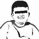 En qué consiste el síndrome de Prader-Willi