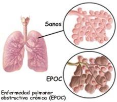 Diferencias entre enfisema pulmonar y cáncer de pulmón