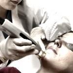 Cuidados necesarios después del láser en la cara