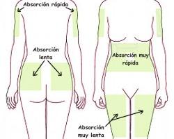 Zonas para administrar insulina