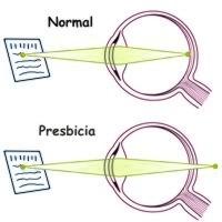 ¿A qué se denomina presbicia?