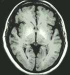 ¿A qué se le llama la cerebropatia?
