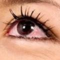 Porque tenemos venas rojas saltadas en los ojos