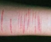 Consejos para controlar las ganas de cortar la piel