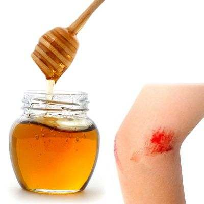 Miel de colmena para cicatrizar
