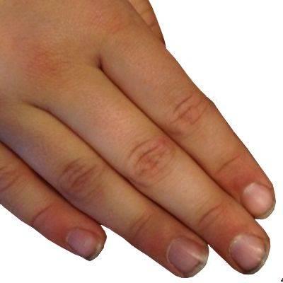 ¿Por qué mis uñas siempre están sucias?