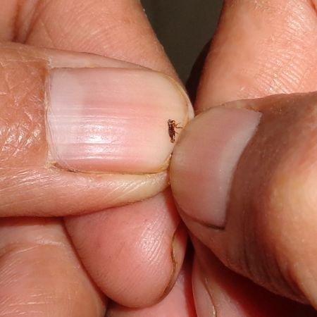 ¿Es malo matar pulgas con las uñas?